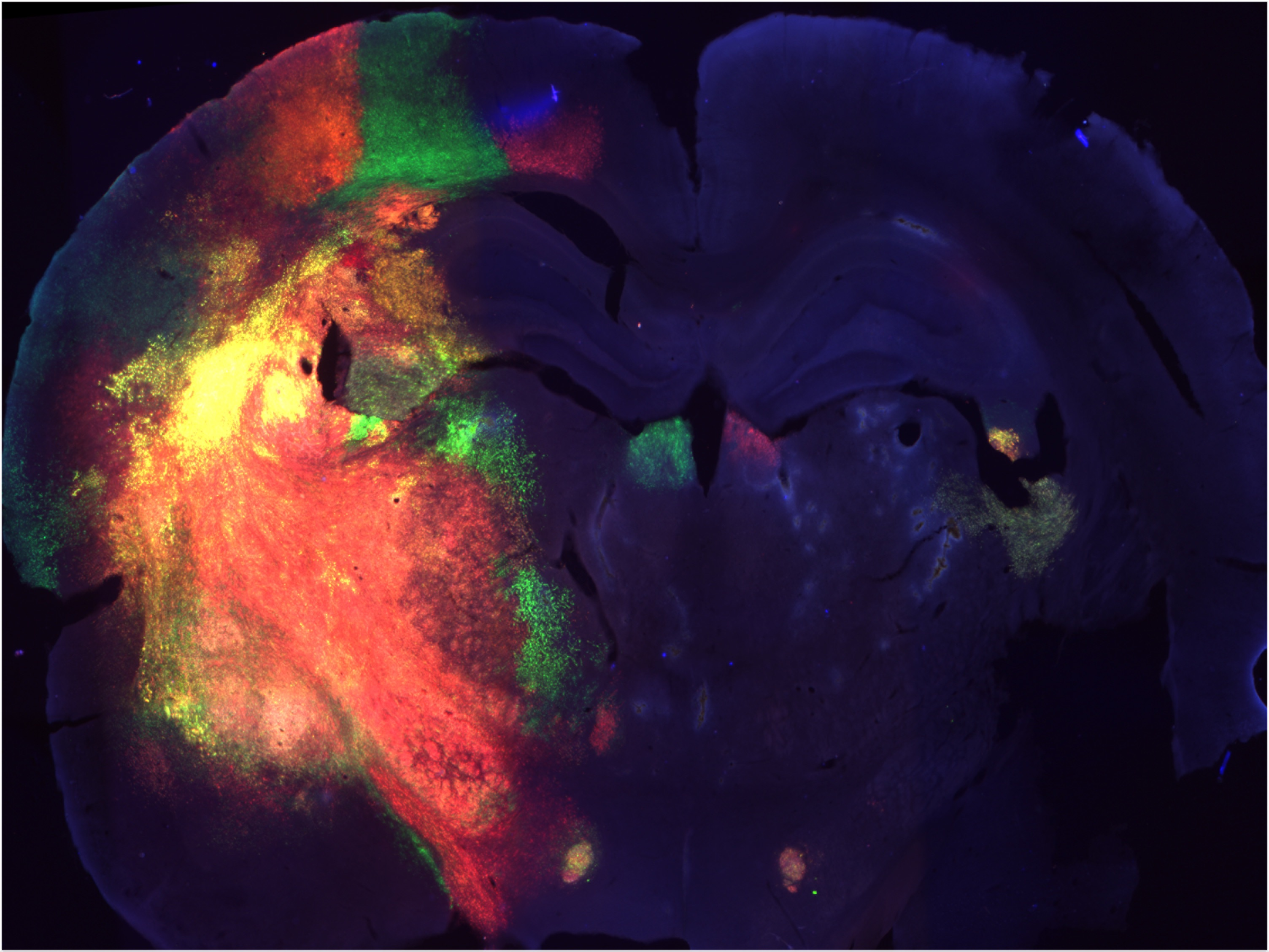 Gliobalstoma in mouse